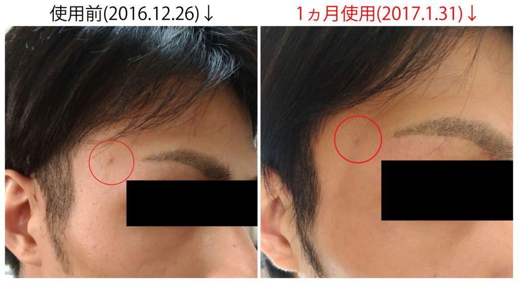 f:id:yamapi33:20170131110404j:plain